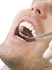 Close Up of Man's Mouth with a Dentist using a Mirror Tool to Examine Him
