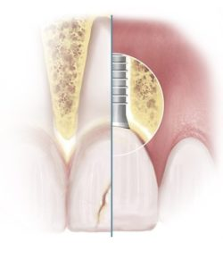Split Diagram Showing Broken Tooth and Replacement Dental Implant